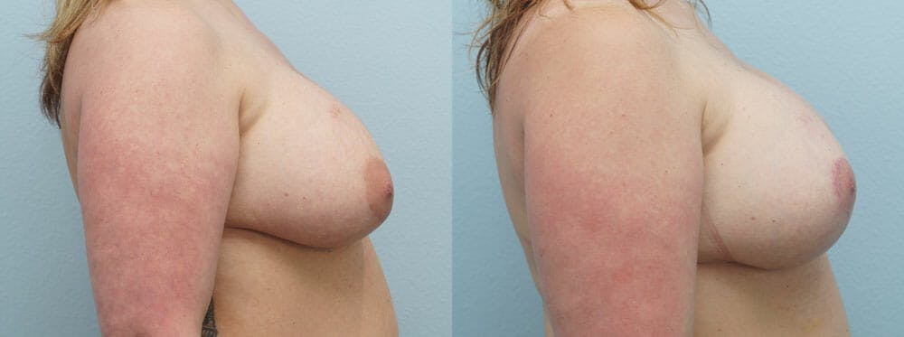 Breast Revision Gallery - Patient 47147068 - Image 3