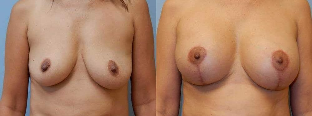 Breast Revision Gallery - Patient 47147081 - Image 1