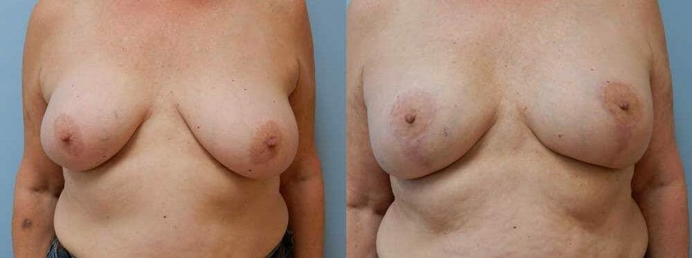 Breast Revision Gallery - Patient 47147113 - Image 1