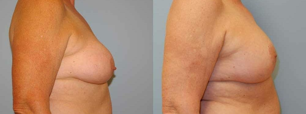 Breast Revision Gallery - Patient 47147113 - Image 2