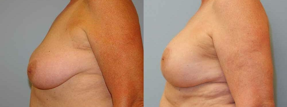 Breast Revision Gallery - Patient 47147113 - Image 3
