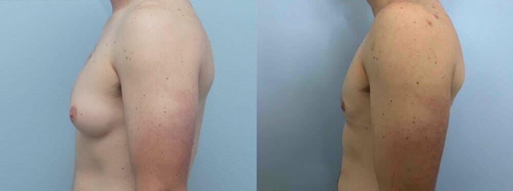 Gynecomastia Repair Gallery - Patient 47147490 - Image 3