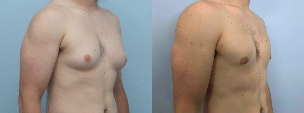 Gynecomastia Repair Gallery - Patient 47147490 - Image 4