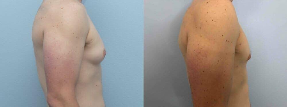 Gynecomastia Repair Gallery - Patient 47147490 - Image 5