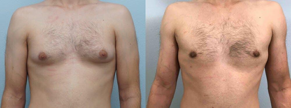 Gynecomastia Repair Gallery - Patient 47147535 - Image 1