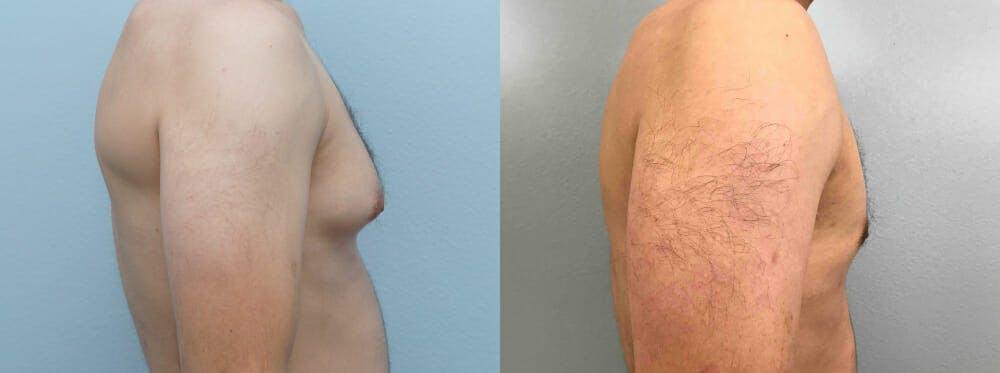 Gynecomastia Repair Gallery - Patient 53582539 - Image 3