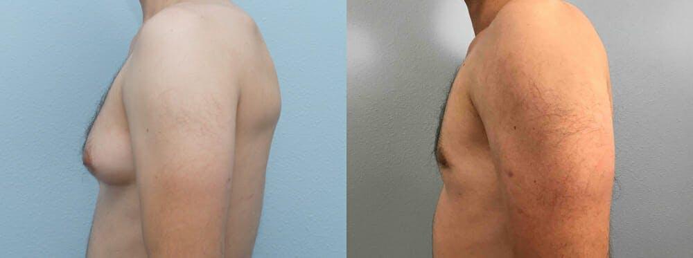 Gynecomastia Repair Gallery - Patient 53582539 - Image 5