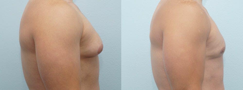 Gynecomastia Repair Gallery - Patient 47147586 - Image 3