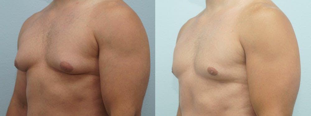 Gynecomastia Repair Gallery - Patient 47147586 - Image 4