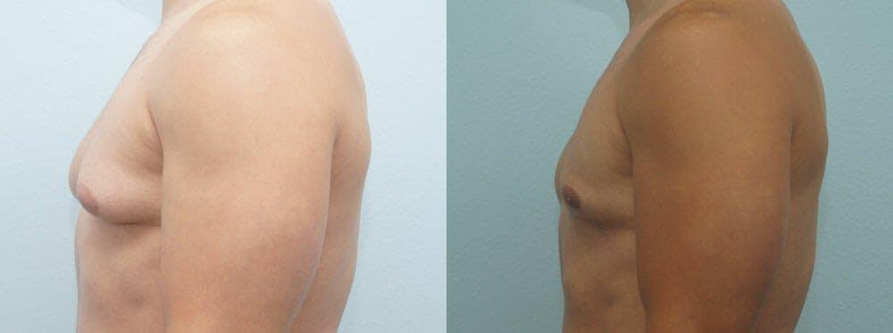 Gynecomastia Repair Gallery - Patient 47147586 - Image 5