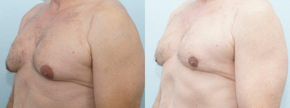 Gynecomastia Repair Gallery - Patient 47147621 - Image 2