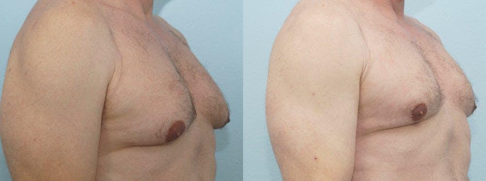 Gynecomastia Repair Gallery - Patient 47147621 - Image 4