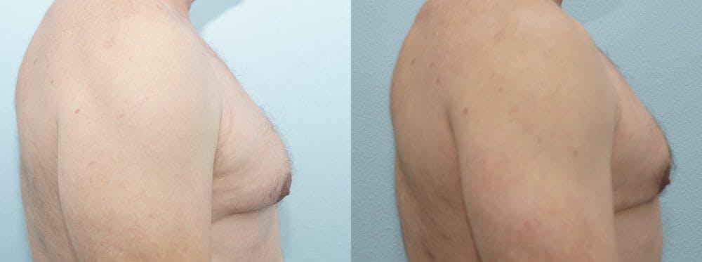 Gynecomastia Repair Gallery - Patient 47147621 - Image 5