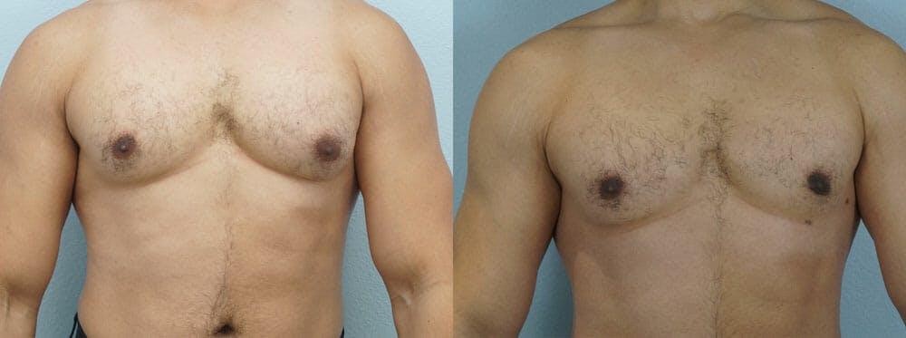 Gynecomastia Repair Gallery - Patient 47147646 - Image 1