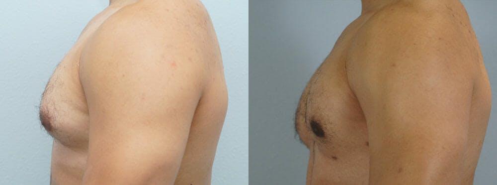 Gynecomastia Repair Gallery - Patient 53582542 - Image 2