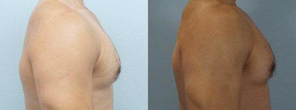 Gynecomastia Repair Gallery - Patient 53582542 - Image 3