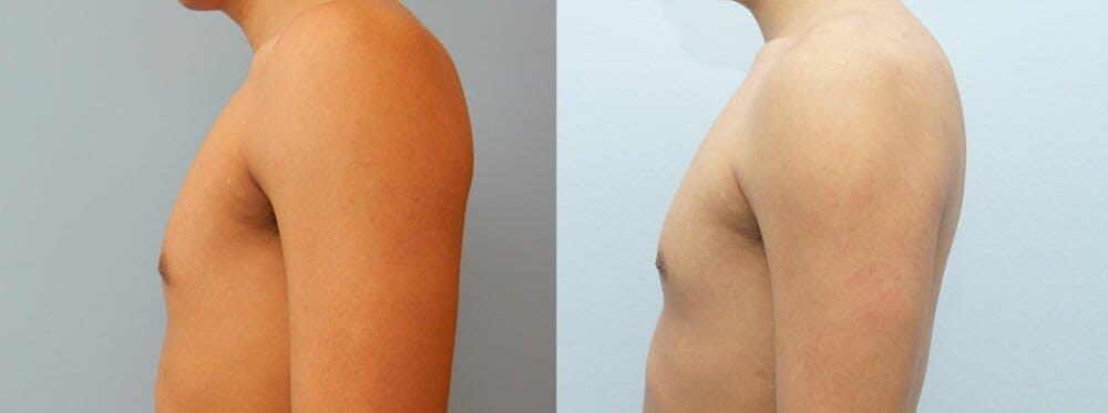 Gynecomastia Repair Gallery - Patient 53582543 - Image 2