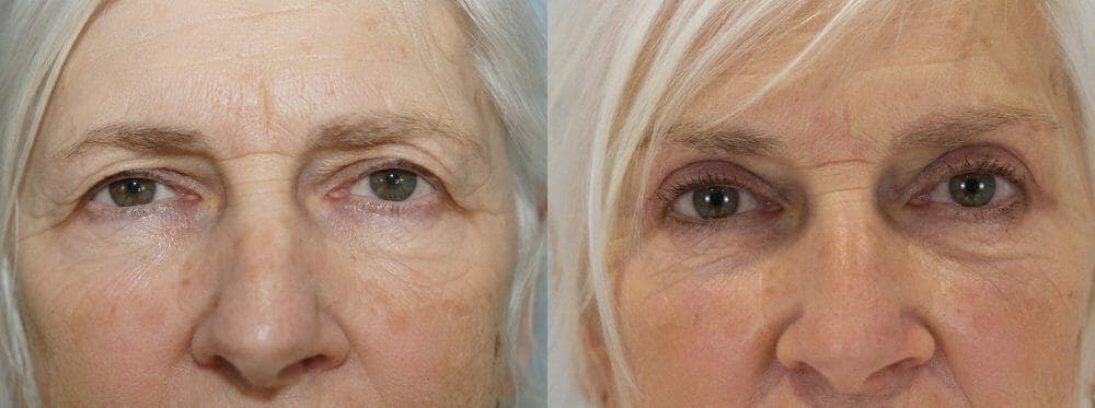 Eyelid Surgery Gallery - Patient 53582628 - Image 1