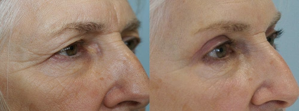 Eyelid Surgery Gallery - Patient 53582628 - Image 2