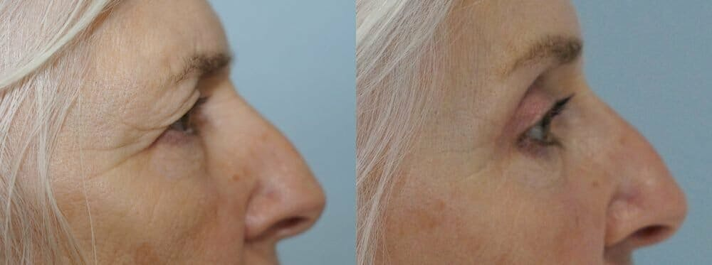 Eyelid Surgery Gallery - Patient 53582628 - Image 3