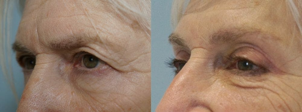 Eyelid Surgery Gallery - Patient 53582628 - Image 4