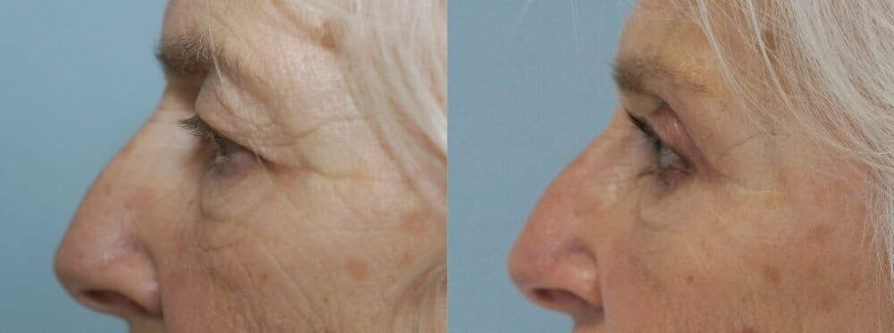 Eyelid Surgery Gallery - Patient 53582628 - Image 5