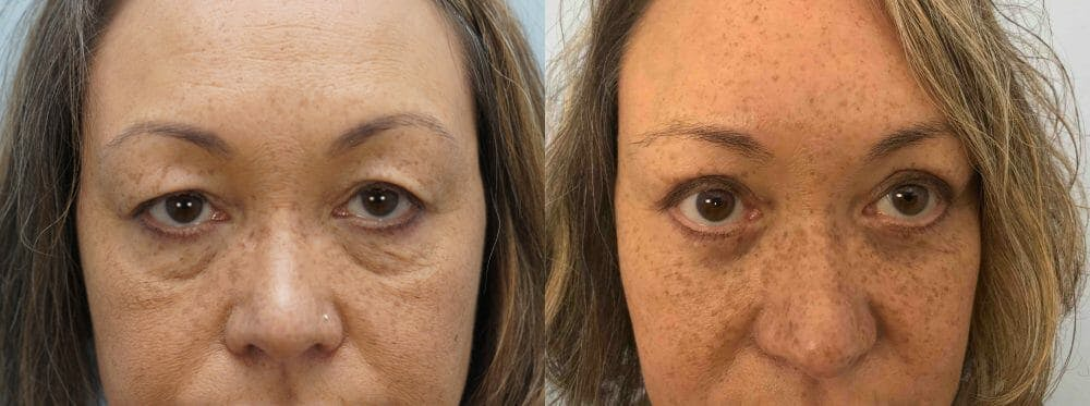 Eyelid Surgery Gallery - Patient 53582629 - Image 1