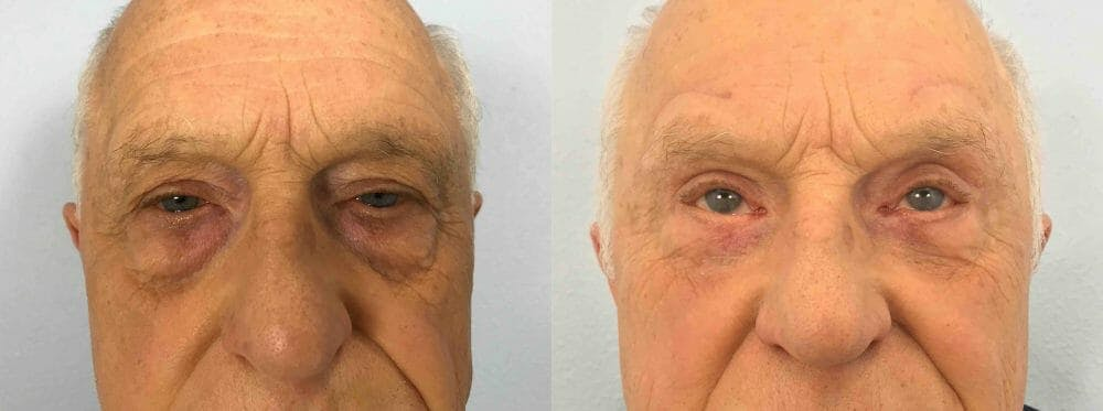 Eyelid Surgery Gallery - Patient 53582630 - Image 1