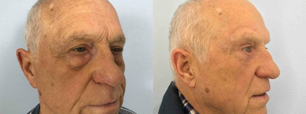 Eyelid Surgery Gallery - Patient 53582630 - Image 2