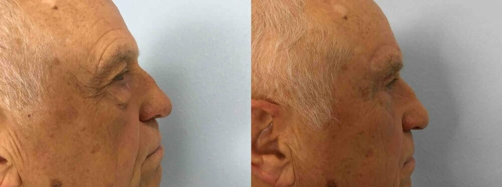Eyelid Surgery Gallery - Patient 53582630 - Image 3