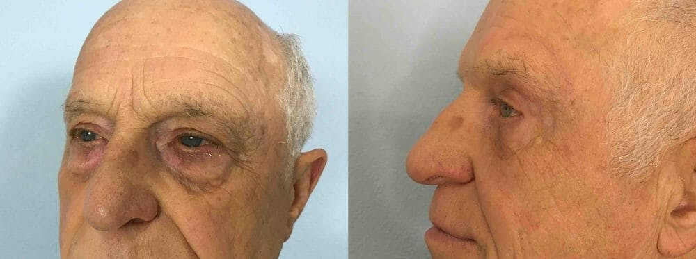Eyelid Surgery Gallery - Patient 53582630 - Image 4