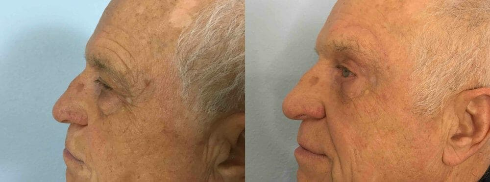 Eyelid Surgery Gallery - Patient 53582630 - Image 5
