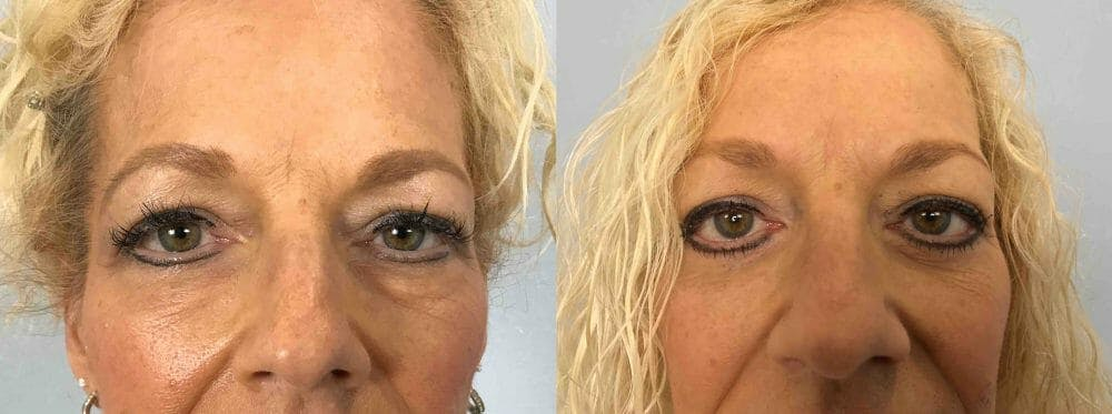 Eyelid Surgery Gallery - Patient 53582631 - Image 1
