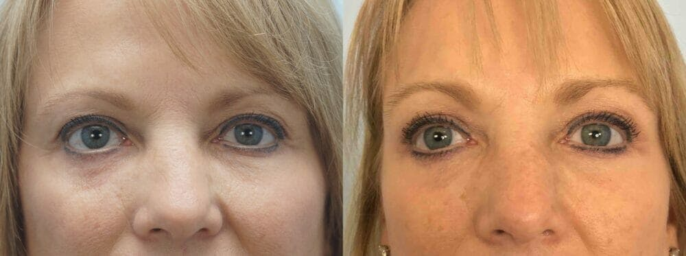 Eyelid Surgery Gallery - Patient 53582632 - Image 1