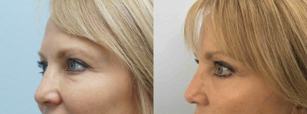 Eyelid Surgery Gallery - Patient 53582632 - Image 2