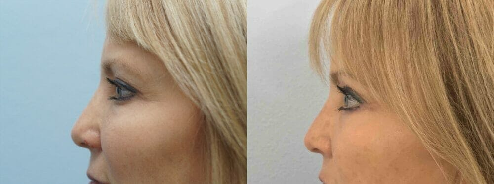 Eyelid Surgery Gallery - Patient 53582632 - Image 3