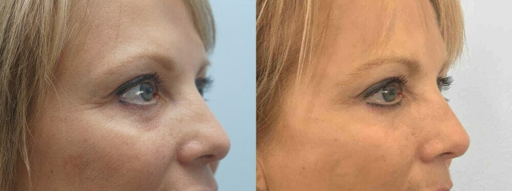 Eyelid Surgery Gallery - Patient 53582632 - Image 4