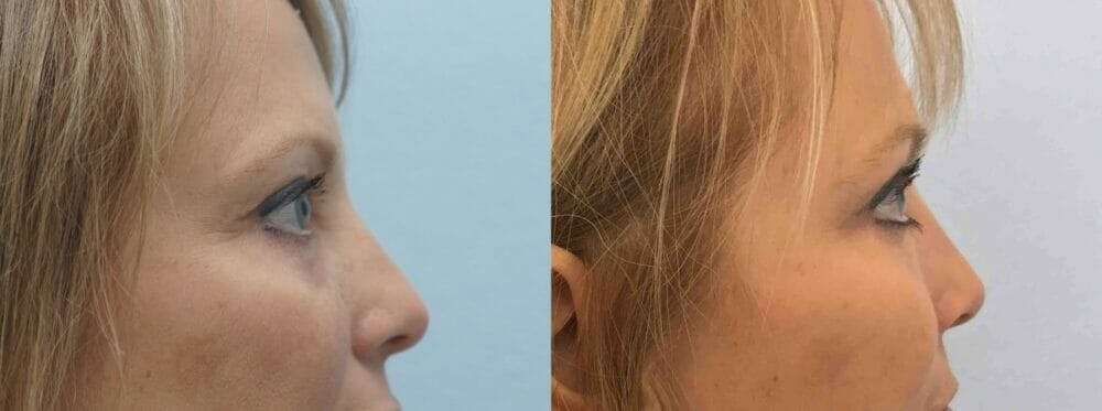 Eyelid Surgery Gallery - Patient 53582632 - Image 5