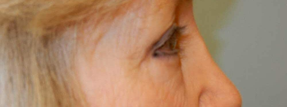 Eyelid Surgery Gallery - Patient 53582633 - Image 2