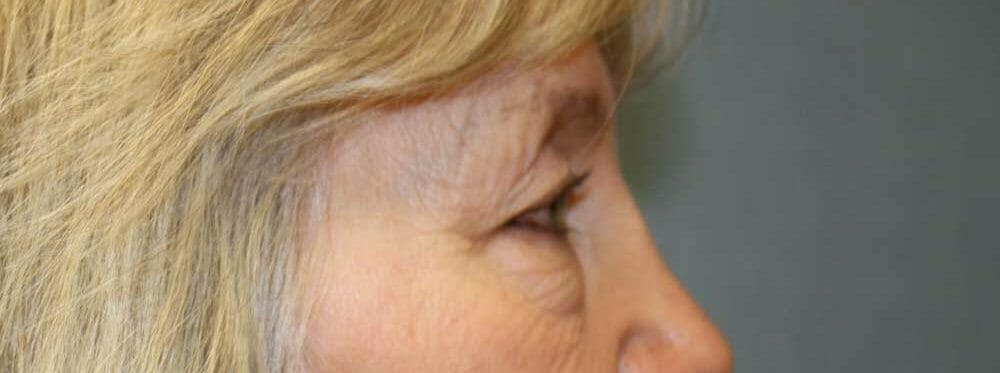 Eyelid Surgery Gallery - Patient 53582633 - Image 3