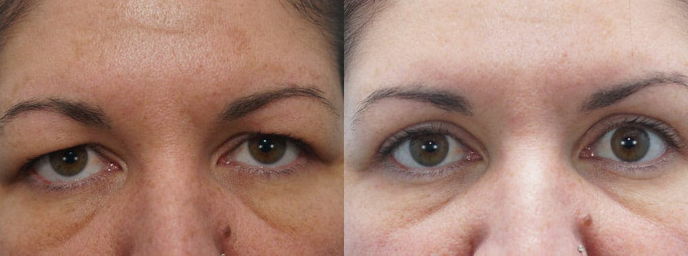Eyelid Surgery Gallery - Patient 53582634 - Image 1