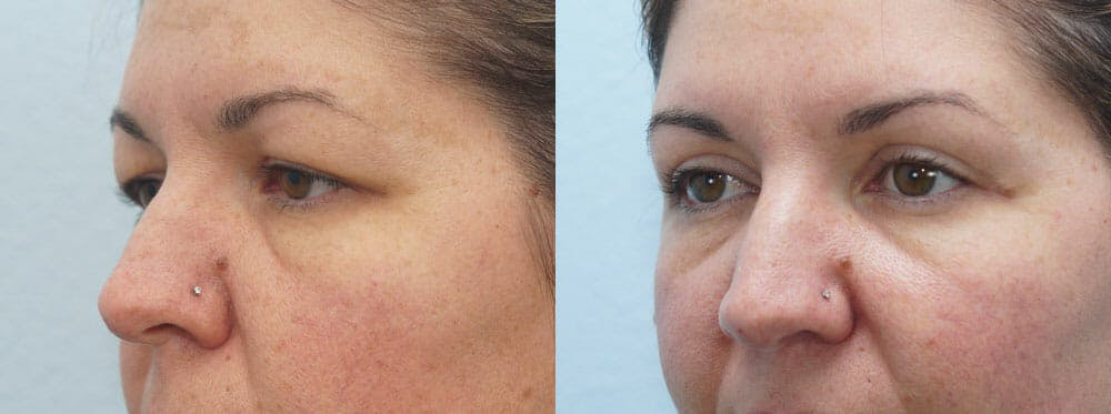 Eyelid Surgery Gallery - Patient 53582634 - Image 2