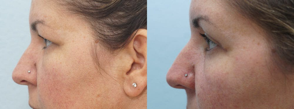 Eyelid Surgery Gallery - Patient 53582634 - Image 3