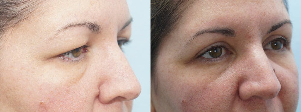 Eyelid Surgery Gallery - Patient 53582634 - Image 4