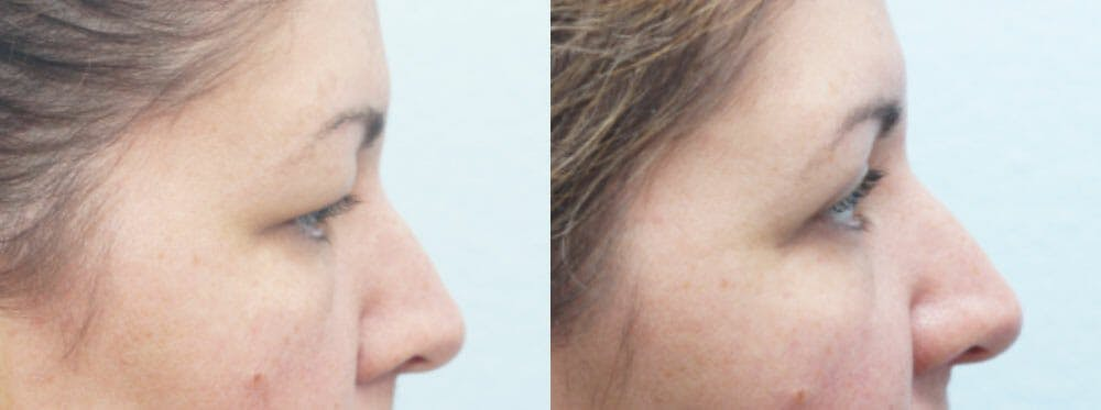 Eyelid Surgery Gallery - Patient 53582634 - Image 5