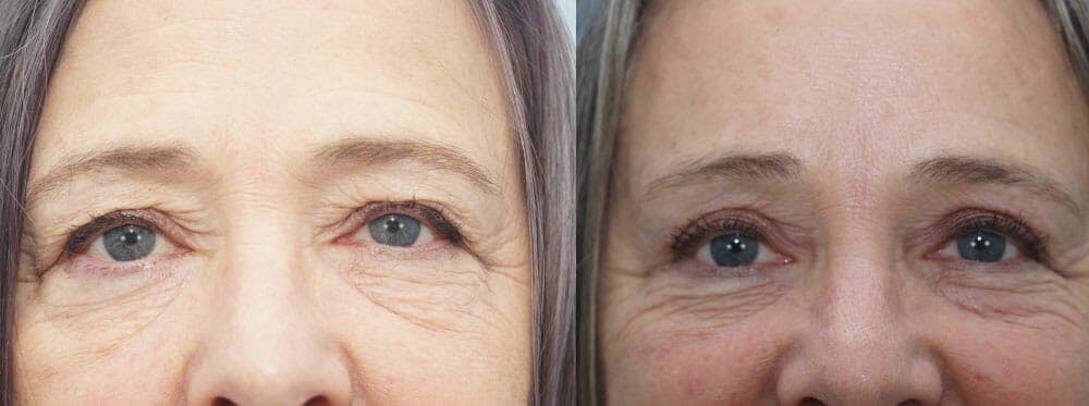 Eyelid Surgery Gallery - Patient 53582635 - Image 1