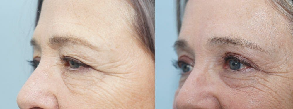 Eyelid Surgery Gallery - Patient 53582635 - Image 2