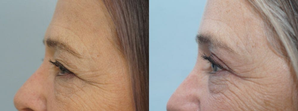 Eyelid Surgery Gallery - Patient 53582635 - Image 3