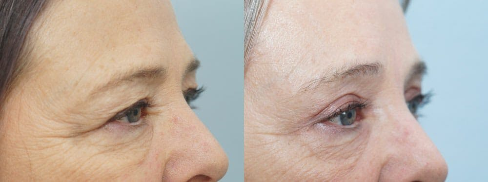 Eyelid Surgery Gallery - Patient 53582635 - Image 4