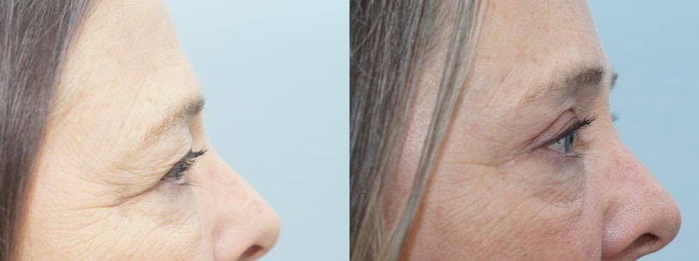 Eyelid Surgery Gallery - Patient 53582635 - Image 5